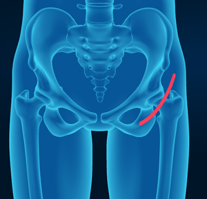 Direct Anterior Hip Replacement
