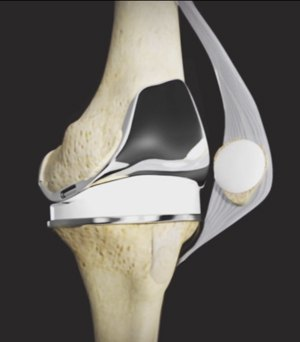 Tricompartmental Knee Replacement